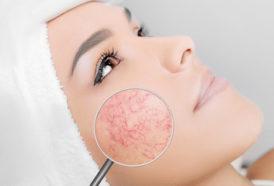 Laserowe leczenie trądziku różowatego Warszawa Revival Clinic