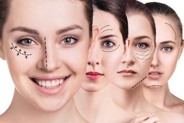 Zabieg odmładzania twarzy medycznym laserem Fotona, wypełnienie zmarszczek i wygładzenie skóry twarzy