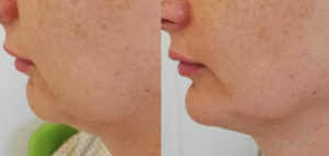 Zabieg hifu zdjęcie przed i po podbródek i chomiczki Revival Clinic