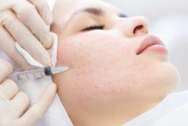 Mezoterapia warszawa- silnie pobudzający do regeneracji skóry zabieg umożliwiający korektę drobnych zmarszczek