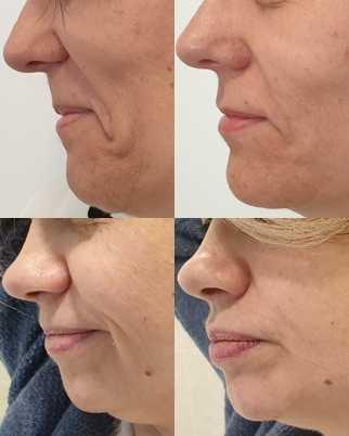 Zdjęcia pacjentek i efekty przed i po zabiegu w technologii HIFU 2 urządzeniem BTL HIPRO V w Revival Clinic