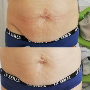 zabieg hifu warszawa zdjecie przed i po brzuch Revival Clinic