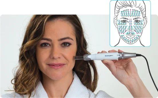 Mezoterapia cienkoigłowa Zabieg dermapen, urządzeniem DERMAPEN® pozwala na wprowadzanie substancji czynnych w głąb skóry