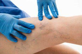 Usuwanie pajączków na nogach i zamykanie naczynek w Revival Clinic