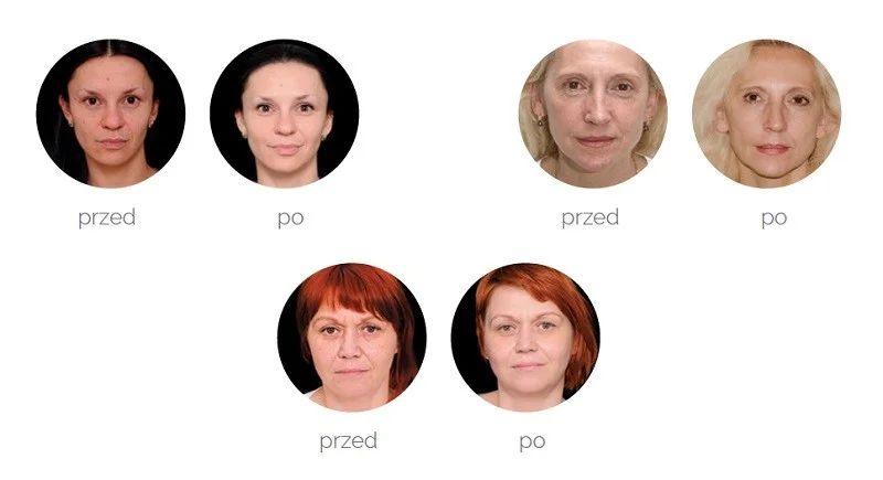 mezoterapia igłowa opinie mezoterapia efekt przed i po