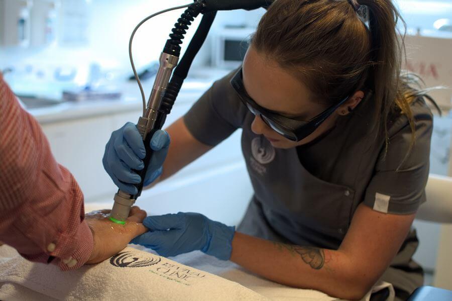 Epilacja - depilacja laserowa Motus AX Warszawa Wilanów Revival Clinic usuwanie owłosienia dłonie