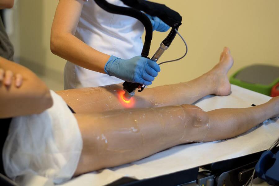 Depilacja laserowa Warszawa Motus AX Revival Clinic uda