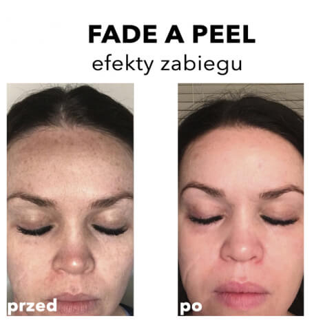 Rhonda Allison Warszawa Peeling na przebarwienia: Fade A Peel