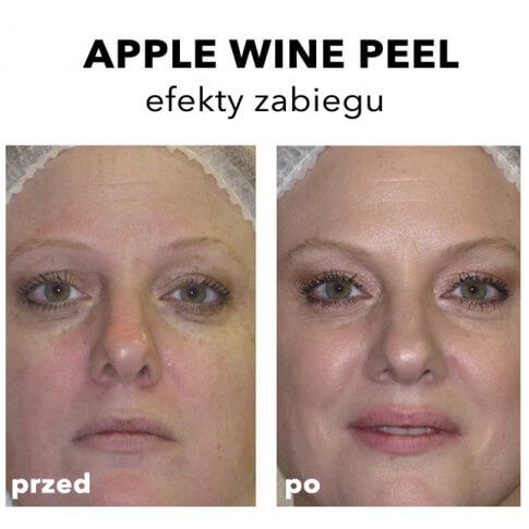 Rhonda Allison Warszawa Peeling winowy anti-age The Apple Wine Peel