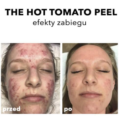 Rhonda Allison Warszawa Zabieg do cery trądzikowych The Hot Tomato Peel