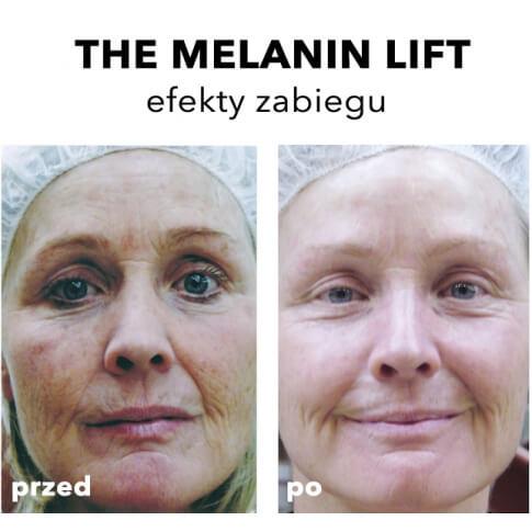 Rhonda Allison Warszawa Peeling liftingująco rozjaśniający The Melanin Lift Warszawa