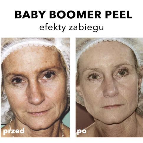 Peeling średni głęboki Rhonda Allison Warszawa Revival Clinic